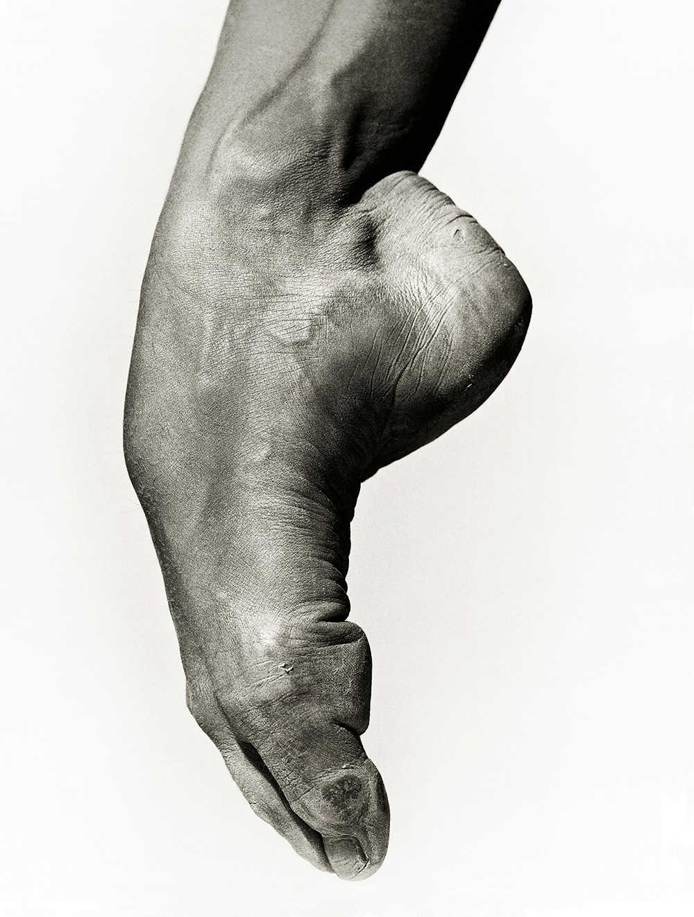 mal au cou de pied
